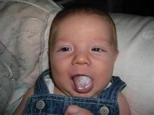 drozga pri novorojenčkih