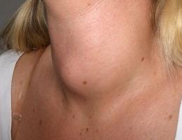 хиперплазия на щитовидната жлеза