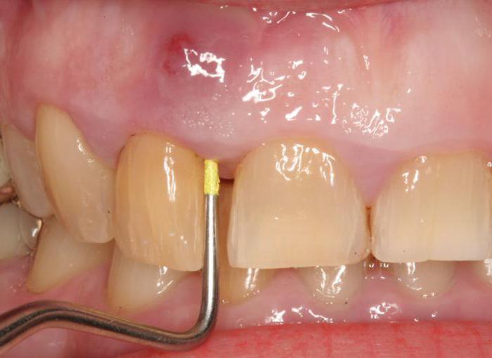 zdravljenje zobnega abscesa