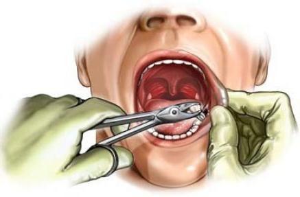 екстракција зуба