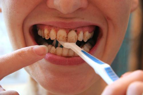 wybielanie proszku do zębów
