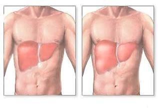 Toksična poškodba jeter