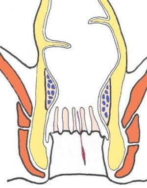trattamento della ragade anale cronica
