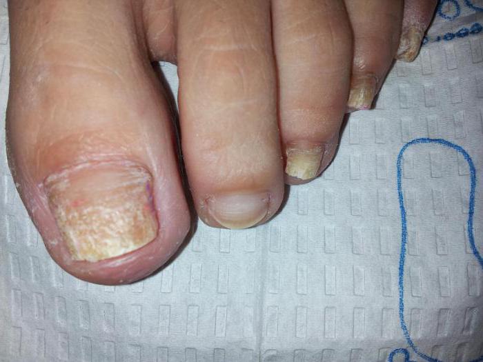 лечение на нокти гъбички с прегледи за лечение на водороден пероксид