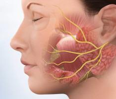 trattamento della neurite del nervo facciale