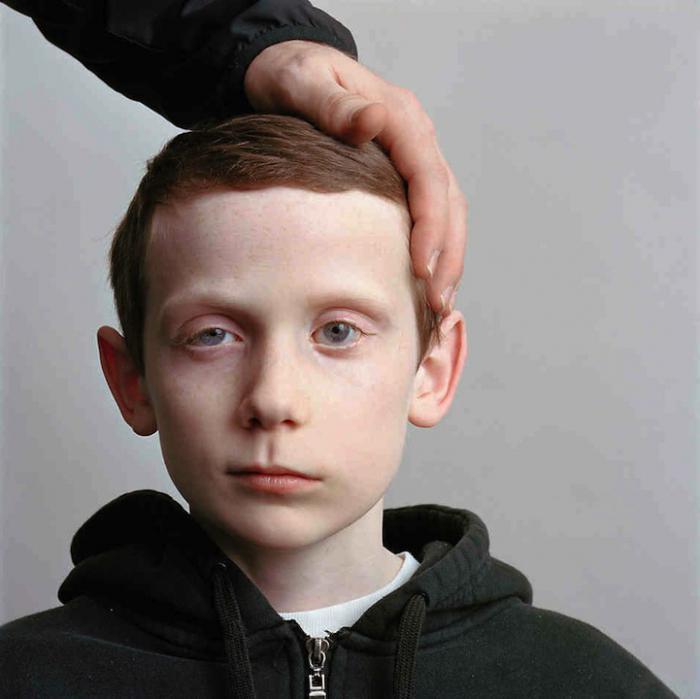 neurite del nervo facciale nei bambini