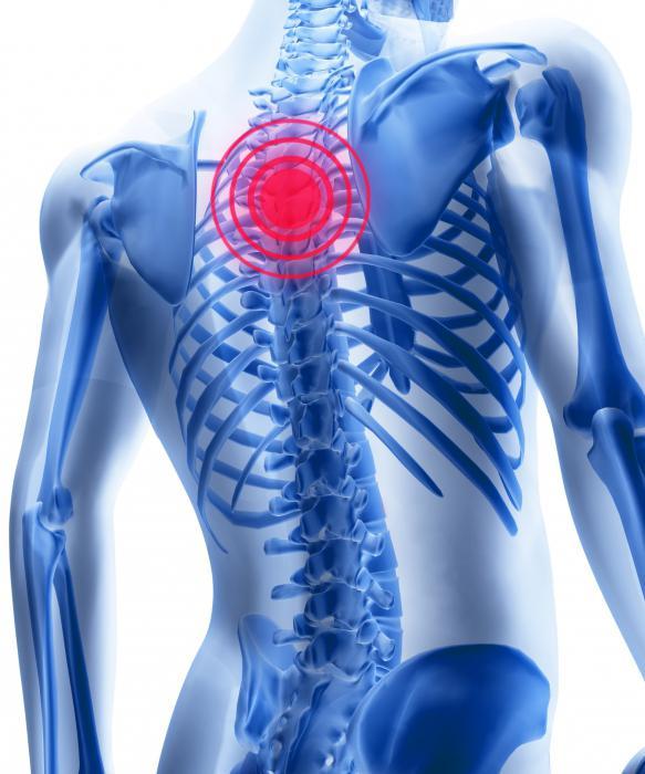 trattamento dell'osteocondrosi della colonna vertebrale toracica