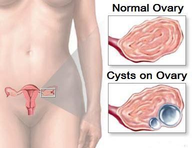 liječenje cista jajnika pomoću narodnih lijekova