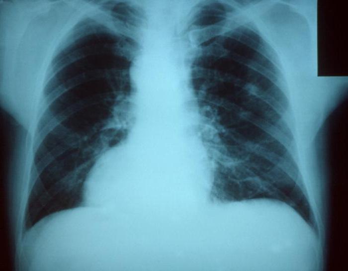 trattamento domiciliare della polmonite
