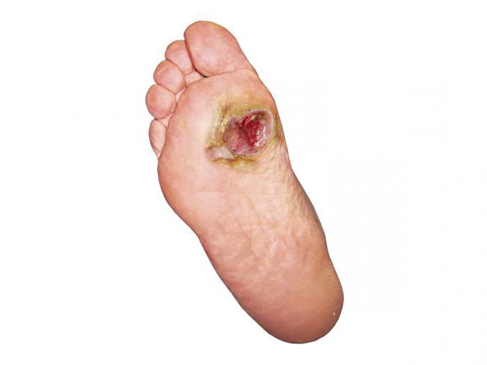 симптоми на трофични язви на краката