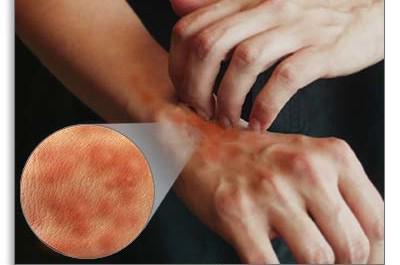 liječenje urtikarije