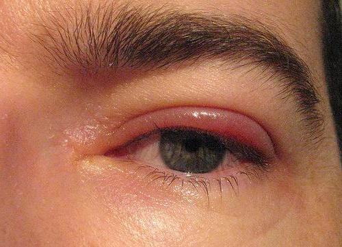 simptomi trihinoze pri otrocih
