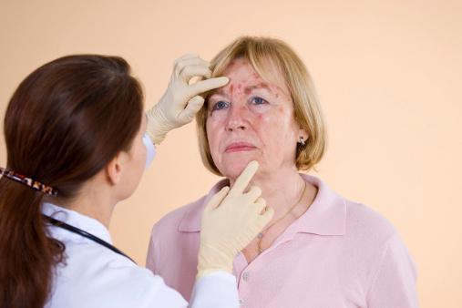 leczenie objawów włośnicy