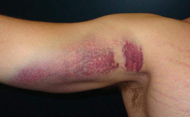 poškodbe zaradi poškodb