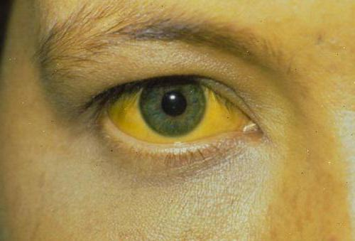 узрокује врсте и третман физиолошке жутице новорођенчади