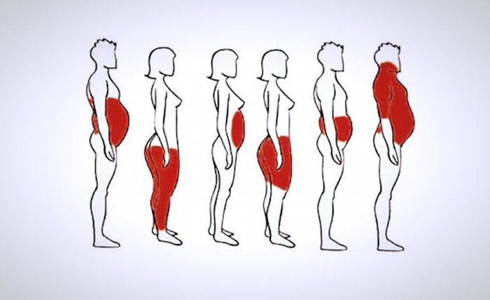 tipi di obesità nelle donne
