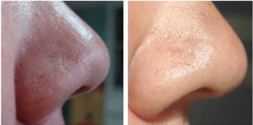 ултразвуковия пилинг елиминира черните петна