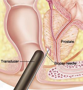ultrazvuk přípravku prostaty