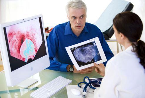 ultrazvuk prostate