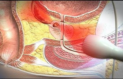 ultradźwięk pęcherza prostaty