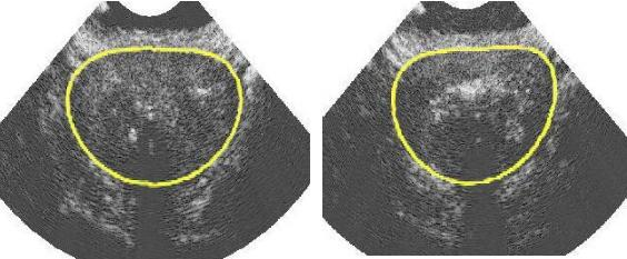 USG prostaty u mężczyzn