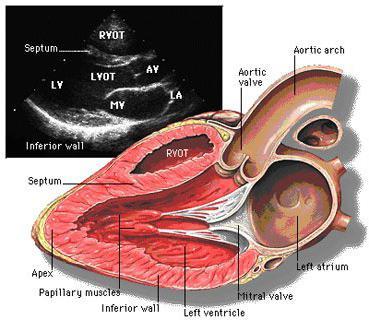 Ultrasuoni del cuore