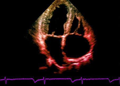 cuore fetale