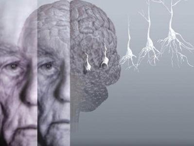 Васкуларна деменција