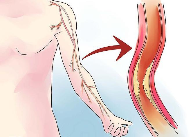 stenosi del collo