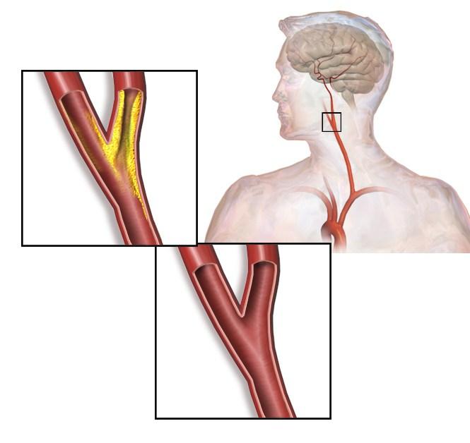 trattamento di stenosi vascolare