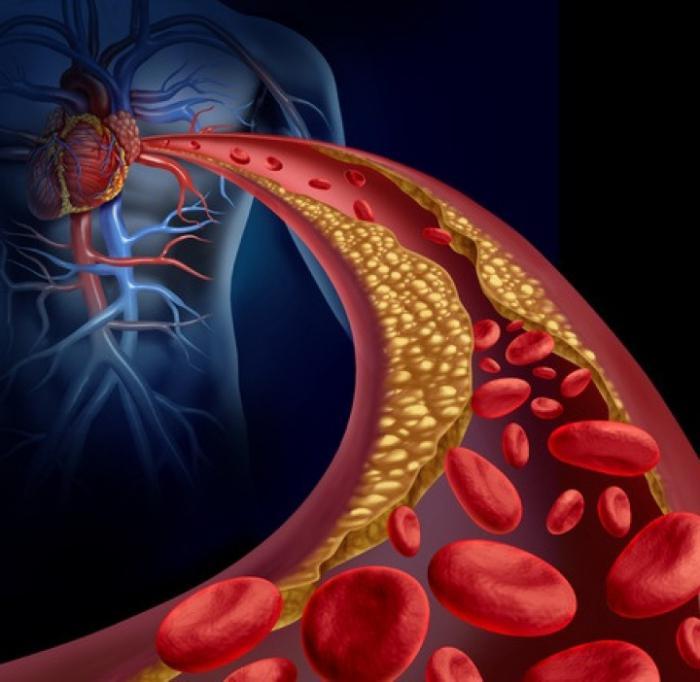 stenosi dei vasi cardiaci