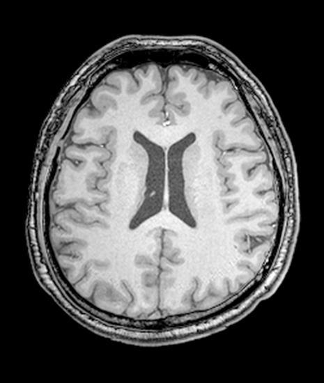 асиметрију вентрикула мозга