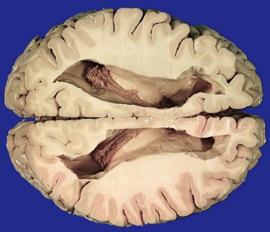povečane prekate možganov