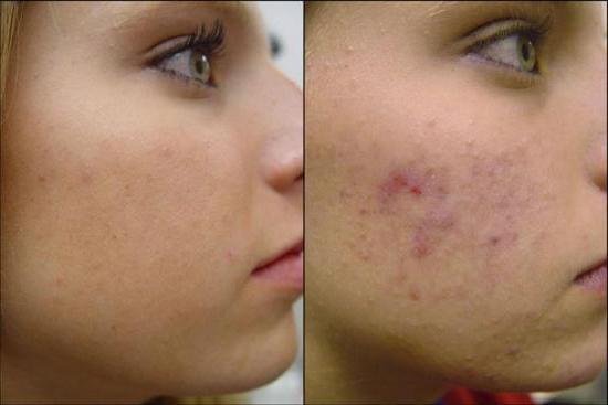 Kako se riješiti ožiljaka lica