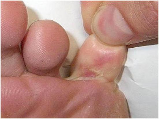 Unguento ai piedi antifungoso