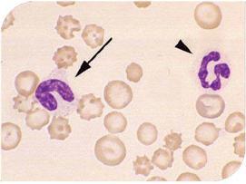 Cosa sono i leucociti nel sangue?