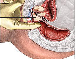 uretrální masáž