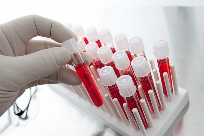 eozynofile we krwi