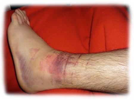 insufficienza cardiaca gonfiore alle gambe