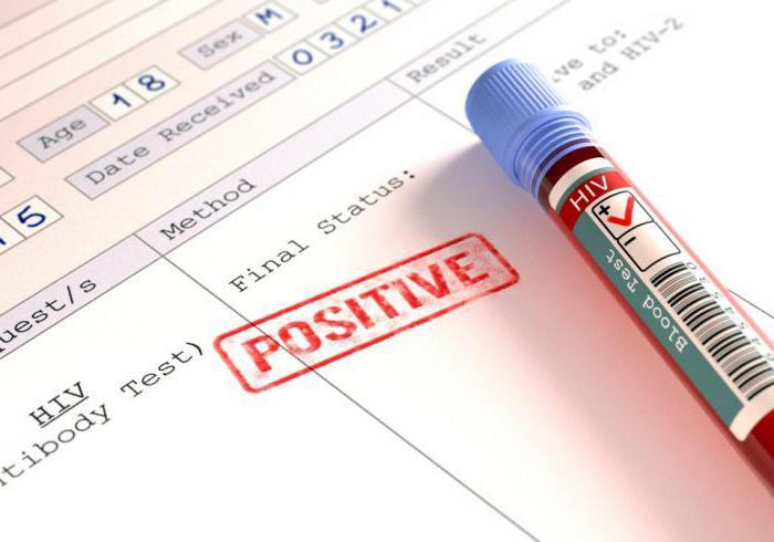 Prevence AIDS