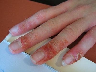 bańki palców