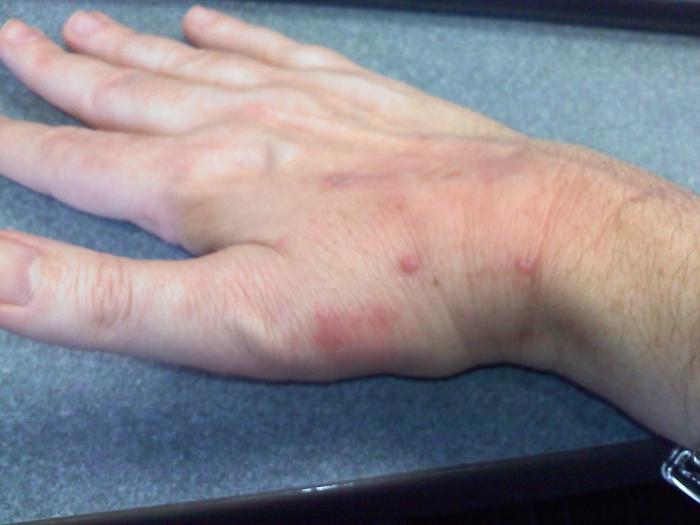 punti rossi sulle mani