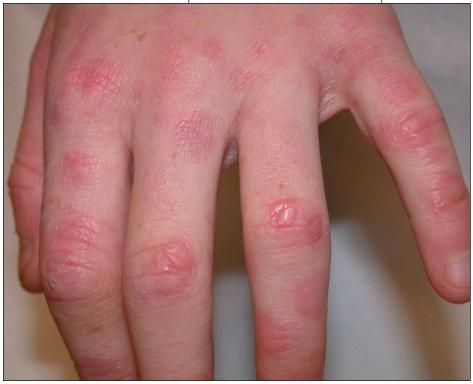 trattamento del granuloma anulare