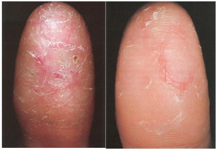 Sbucci la pelle sulle dita