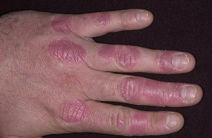 Il bambino ha la pelle sulle dita
