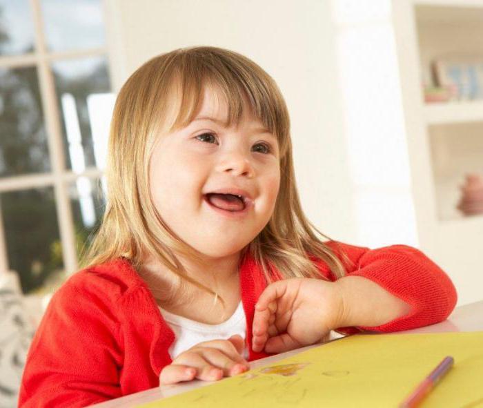 i bambini con la sindrome