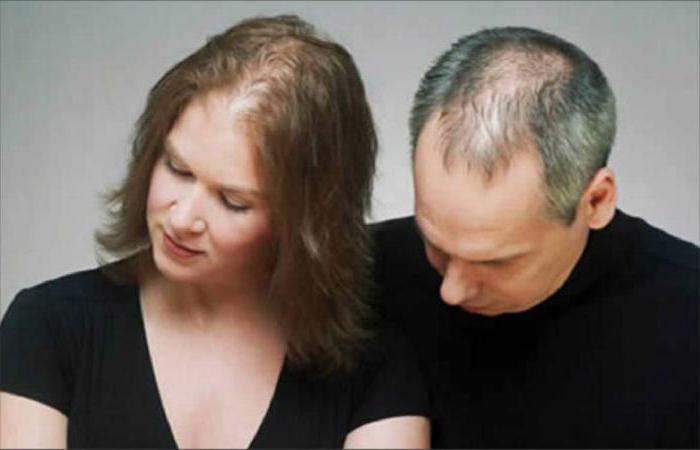 alopecija, kaj je