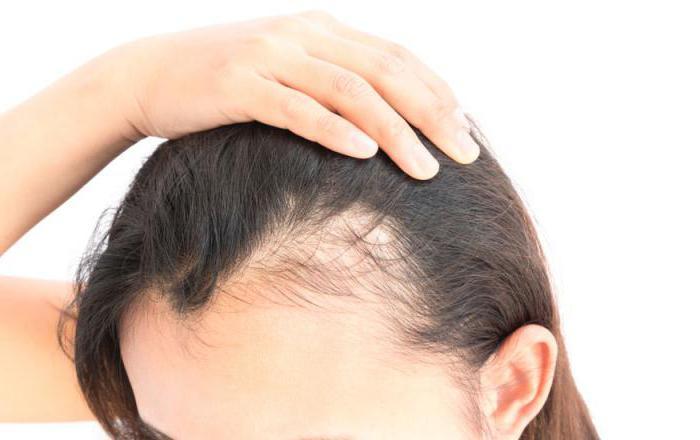 zdravljenje alopecije