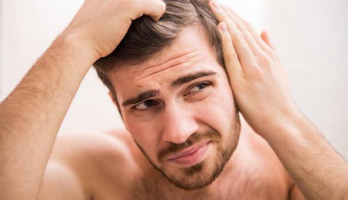 difuzna alopecija