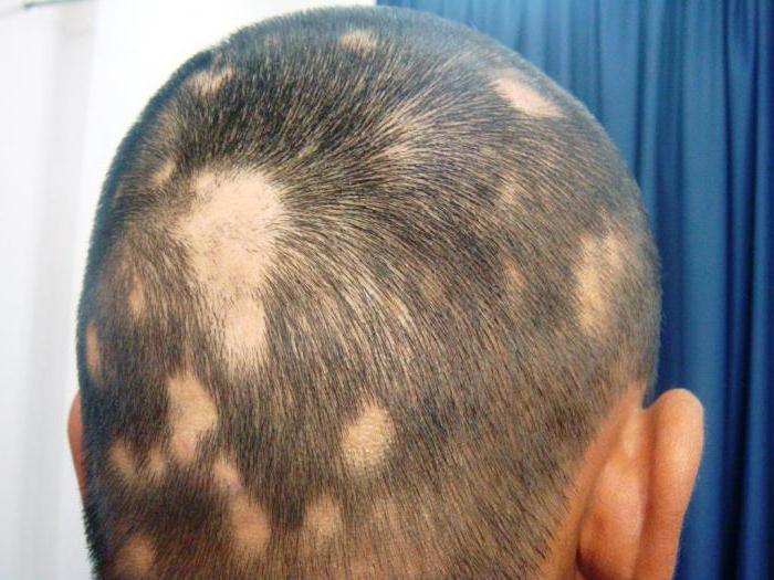 alopecija las